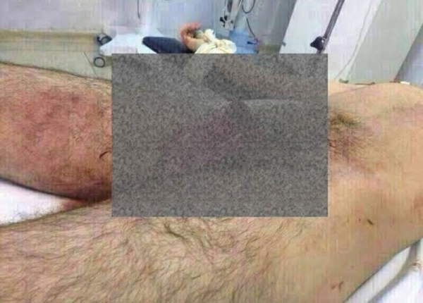 homem pênis cortado, sem pênis, pênis, pênis cortado, médica
