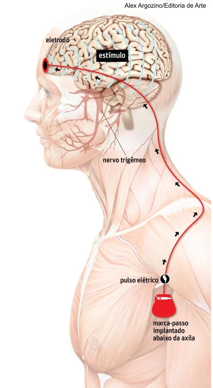 Tratamento de pacientes com eletrodos e estímulos elétricos