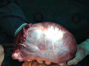 Médico diz que paciente não suspeitava de tumor (Foto: Jakson Ramos/Arquivo Pessoal)