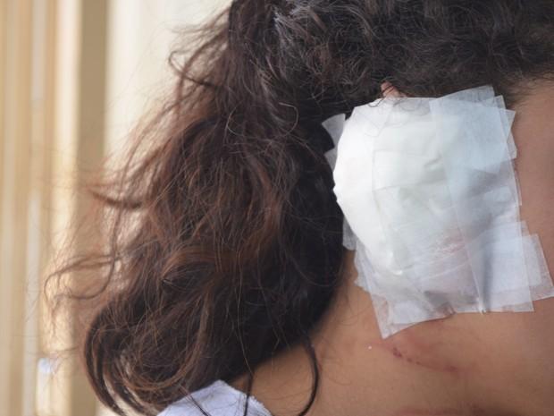 Menina teve parte da orelha arrancada aos dentes por colega  (Foto: Igor Nunes/Arquivo pessoal)
