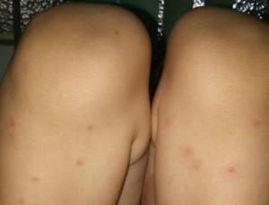 Mãe registrou como ficaram as pernas do filho após picadas (Foto: Francyele Fernandes/Arquivo Pessoal)