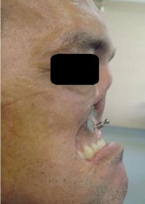 Homem faz reconstrução do rosto após passar 4 anos sem sair de casa em MG