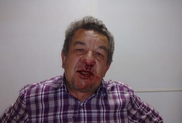 Prefeito sofreu escoriações e foi dirigindo até o hospital
