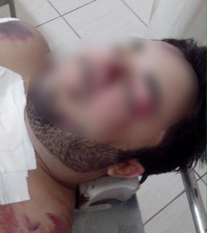 Fotos do corpo de Cristiano Araújo, que vazaram na internet, teriam sido feitas em clínica