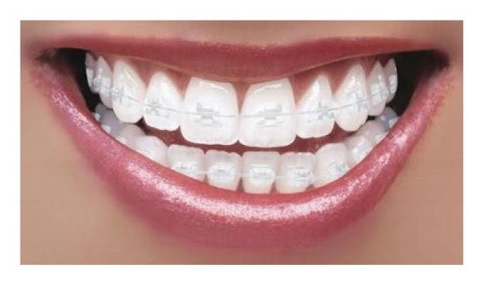 Dentes alinhados sem o uso de aparelhos fixos