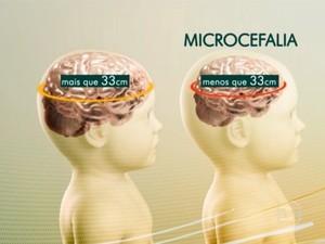 Em casos da doença, bebê nasce com o crânio menor do que o normal (Foto: TV Globo)