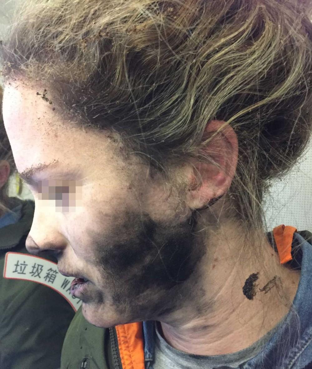 Passageira viajava entre Pequim e Melborne quando fones de ouvido pegaram fogo (Foto: Divulgação/ATSB)