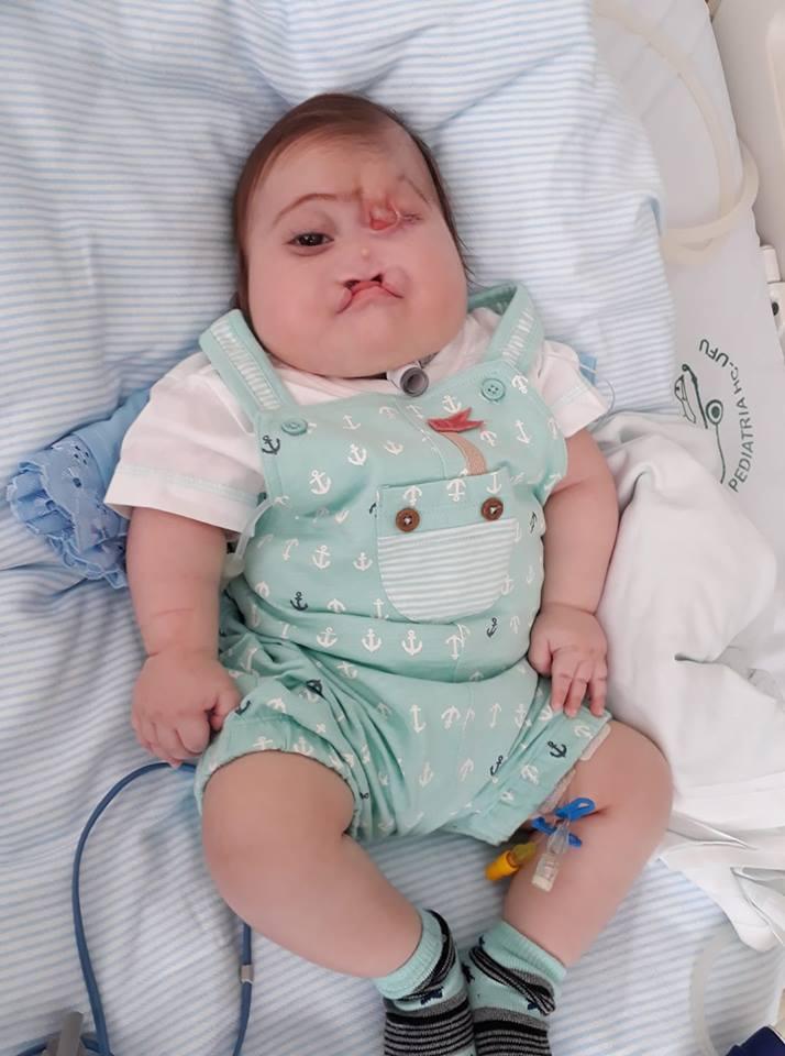 Ainda recém-nascido, Henrique teve de remover um olho, porém, a alegria e vontade de viver do pequeno emociona a todos.