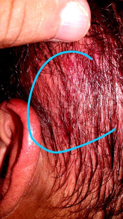Dionata foi agredido com uma pedrada na cabeça (Foto: PMMG)